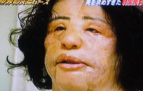 Hang Mioku korean plastic surgery injected cooking oil into face